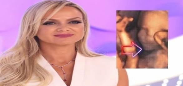 Apresentadora do SBT comove o Brasil com seu drama. ( Foto: Reprodução)