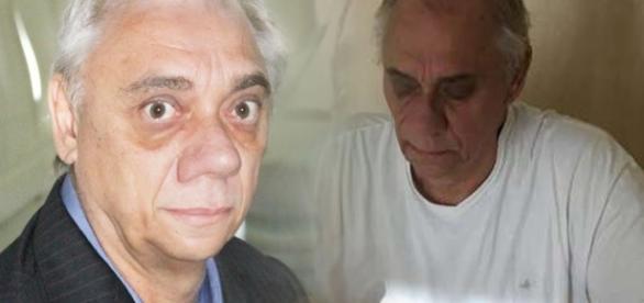 Muito magro, Marcelo Rezende choca com aparência (Foto: Reprodução)