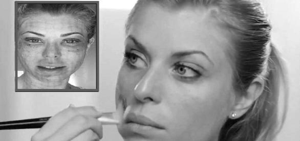 Processo estético deixa hematomas na modelo Caroline Bittencourt