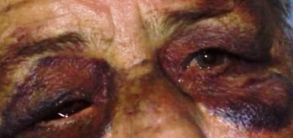 Idosa é estuprada pelo filho em Minas Gerais