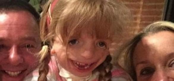 A síndrome de Treacher Collins é uma condição grave e rara (Foto internet)