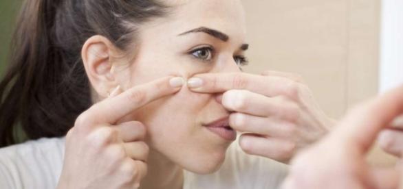 Pesquisadores estão estudando vacina que pode por fim à acne (Foto: Reprodução)
