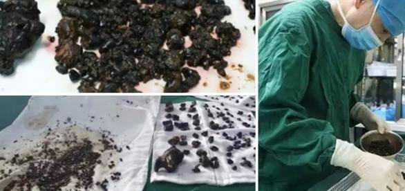 Mulher passar por cirurgia para remoção de pedras