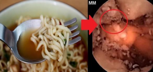 Miojo não cai tão bem assim no estômago (Foto: Reprodução/ Montagem)