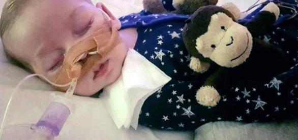 Morre Charlie Gard, o bebê que comoveu o mundo