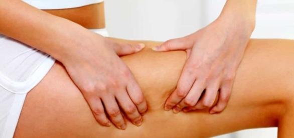 Cellulite, come combatterla con rimedi semplici