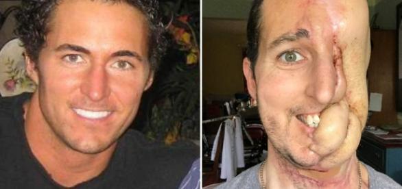 Homem realiza cirurgia depois de perder a metade do rosto
