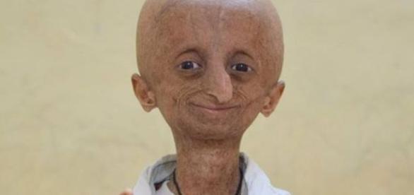 Progeria se caracteriza pelo envelhecimento precoce - Google