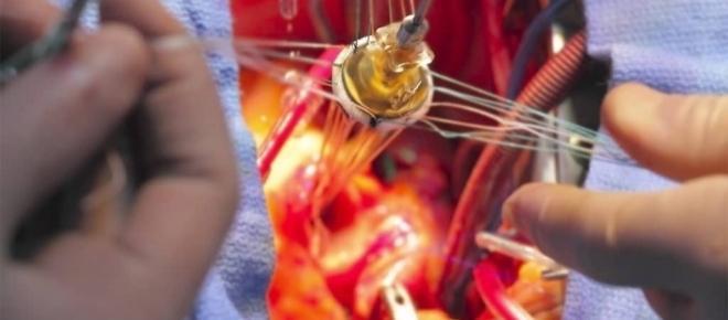 Herzschrittmacher statt im Herz-Vorhof in der Arterie implantiert