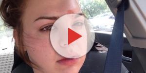 Katie Wright contraiu uma celulite infecciosa (Foto: Reprodução/Twitter)