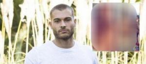 Découvrez Quentin avant et après un régime draconien
