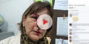 Professora sofre agressão física por aluno de 15 anos (Reprodução/Facebook)