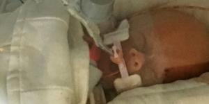 Morre bebê cuja mãe abandonou quimioterapia para manter gravidez