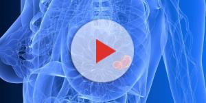 Tumore al seno, ma la credono stressata
