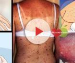 Alguns dos sintomas do HIV incluem erupções na pele
