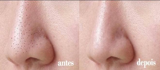 Saiba como remover cravos do nariz em apenas 2 minutos