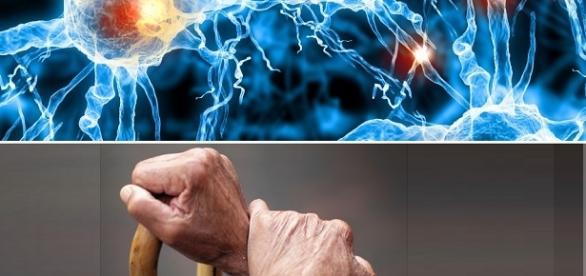 Cellule staminali derivate da cellule del sangue o della pelle, potrebbero curare il Parkinson