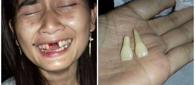 Resultado de imagem para Homem é preso por arrancar dois dentes da esposa viciada em celular com um chute