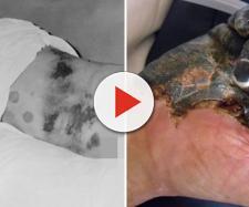 Garotinha morre de doença mas devastadora que a peste negra