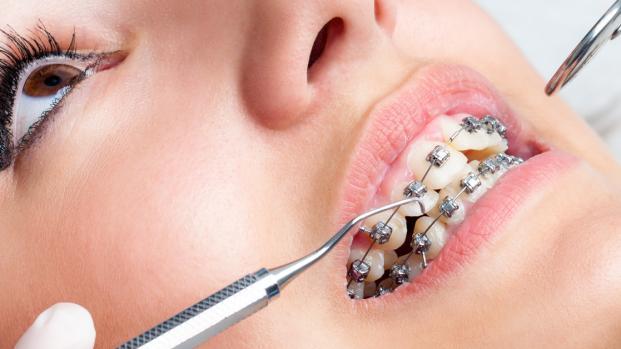 Soluciones para las enfermedades dentales
