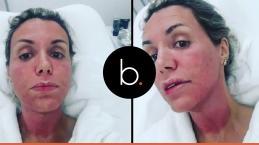 Desfigurada, Renata Banhara padece em meio a bactéria comedora de cérebro