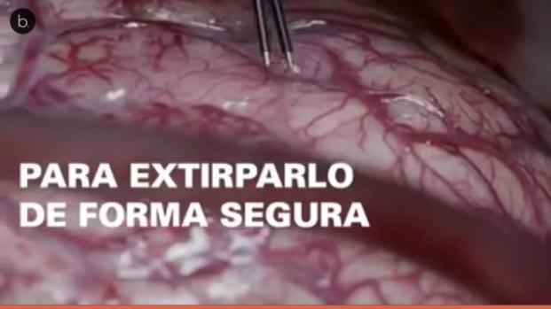 ¿Es posible operar del cerebro a un paciente despierto?