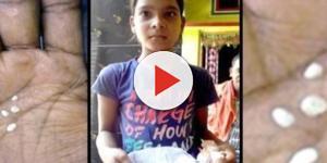 Insólito: menina chora 'lágrimas de algodão'. Confira