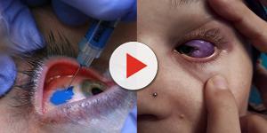 Tatuagem ocular pode deixar modelo cega para sempre