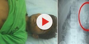 Intervento choc: feto trovato morto nello stomaco di un ragazzo