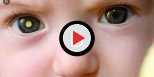 Bebê vence câncer raro com quimioterapia após quase perde olho