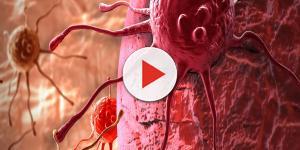Tumore colon-retto: chi rischia e perché