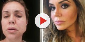 Renata Banhara sofre com deformação de seu rosto