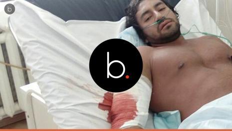 Após lesionar o tríceps durante o treino fisiculturista morre de infecção