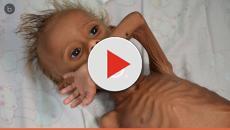 Saiba o que aconteceu com o menino Saleem, cuja imagem chocou o mundo