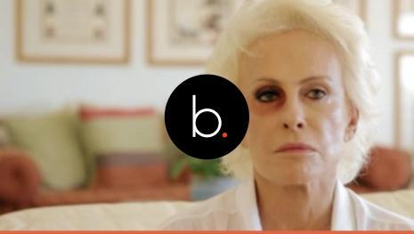 Assista: Ana Maria Braga aparece com  olho roxo no instagram, entenda