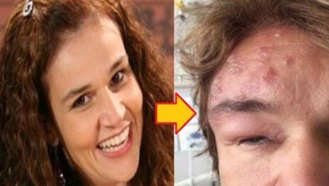 Assista: Claudia Rodrigues tem seu rosto deformado por doença terrível; veja