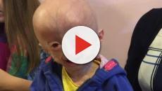 Si è spenta la piccola Lucy: la bimba col corpo da anziana