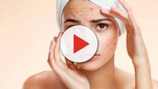 VIDEO: Si tienes acné alégrate, envejecerás más tarde y mejor