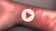 ¡Esta aplicación permite que resistas el impulso de autolesionarse!