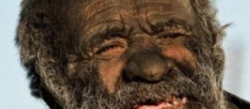Amoo Hadji, l'uomo più sporco del mondo