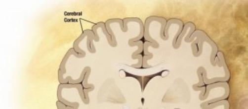 Alzheimer, nuevos progresos en su tratamiento.