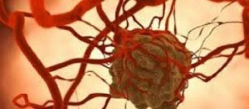 Tumor cancerígeno de mama