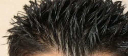 Causas y soluciones para el pelo graso.