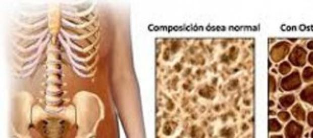 Comparación de hueso sano y hueso osteoporótico