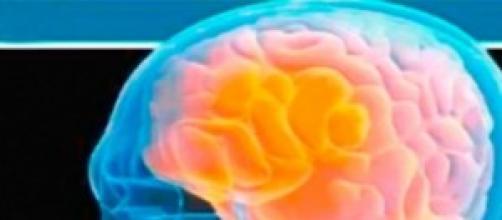 Imagen de una radiografía cerebral.