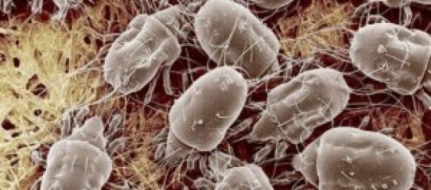 Oggetti comuni infestati da batteri