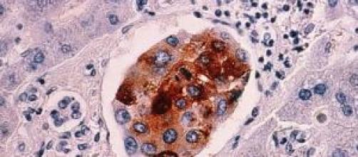 Ejemplo de metástasis producida por un cáncer