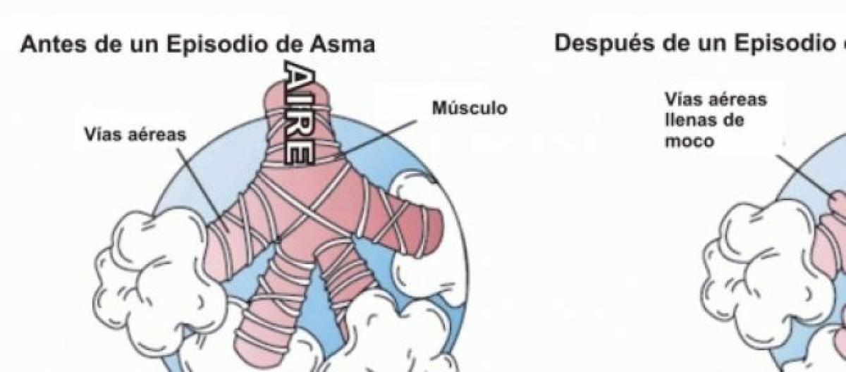 El asma y la vía aérea unificada