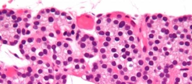 Micrografía da glândula paratiroide (Wikipedia)