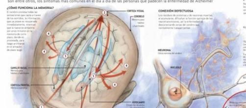 Nuevo tratamiento para curar el Alzheimer